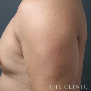 THE CLINIC(ザ・クリニック)東京院の上腕の脂肪吸引(ベイザー4D)の症例写真(ビフォー)