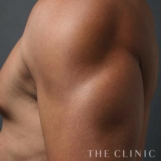 THE CLINIC(ザ・クリニック)東京院の上腕の脂肪吸引(ベイザー4D)の症例写真(アフター)
