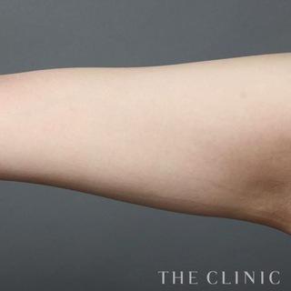 THE CLINIC(ザ・クリニック)大阪院の二の腕のベイザー脂肪吸引の症例写真(アフター)
