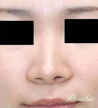 銀座S美容・形成外科クリニックの鼻尖縮小術+耳介軟骨移植の症例写真(アフター)