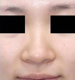 銀座S美容・形成外科クリニックの鼻尖縮小術+耳介軟骨移植の症例写真(ビフォー)