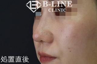 B-LINE CLINICの【鼻ヒアルロン酸注入(クレヴィエル)】 処置直後の症例写真(アフター)