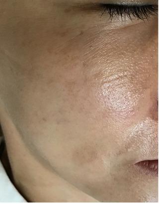 メディカルプラスクリニック新宿のヴェルベットスキンの症例写真(ビフォー)