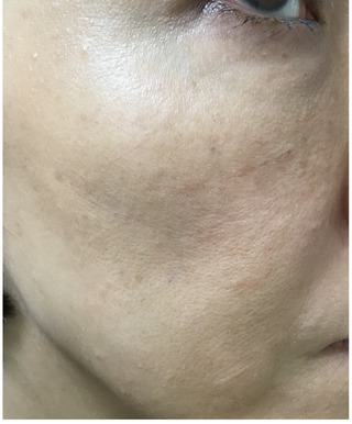 メディカルプラスクリニック新宿のヴェルベットスキンの症例写真(アフター)