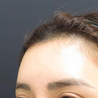 プルージュ美容クリニックのぷるぷる注射の症例写真(ビフォー)