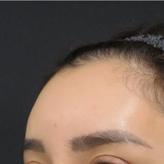 プルージュ美容クリニックのぷるぷる注射の症例写真(アフター)