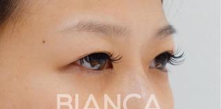 BIANCA銀座の二重全切開の症例写真(ビフォー)