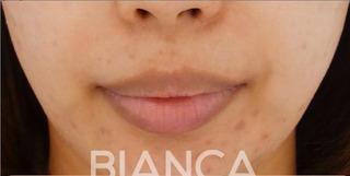 BIANCA銀座の口唇を小さくの症例写真(ビフォー)