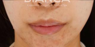 BIANCA銀座の口唇を小さくの症例写真(アフター)