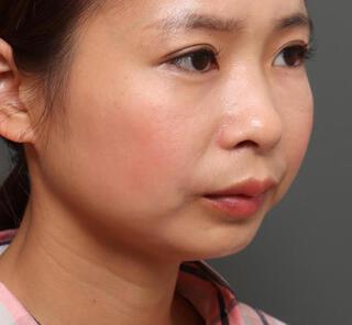オザキクリニックLUXE新宿の顎プロテーゼ+全切開二重まぶた法+目頭切開の症例写真(ビフォー)