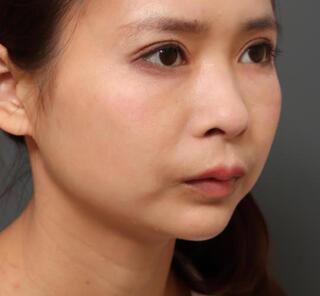 オザキクリニックLUXE新宿の顎プロテーゼ+全切開二重まぶた法+目頭切開の症例写真(アフター)