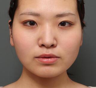 オザキクリニックLUXE新宿の二重埋没法(2点留め)+目頭切開の症例写真(ビフォー)