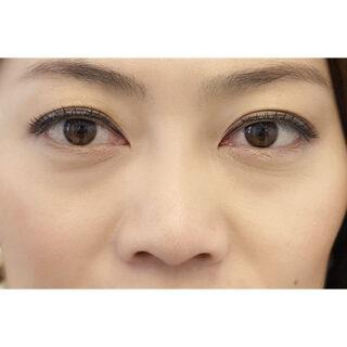 A CLINIC YOKOHAMA(エークリニック横浜)の目の下のふくらみを解消してハリのある若々しい目元に!【目の下のふくらみ取り】の症例写真(ビフォー)