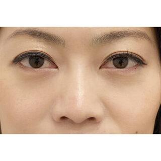 A CLINIC YOKOHAMA(エークリニック横浜)の目の下のふくらみを解消してハリのある若々しい目元に!【目の下のふくらみ取り】の症例写真(アフター)