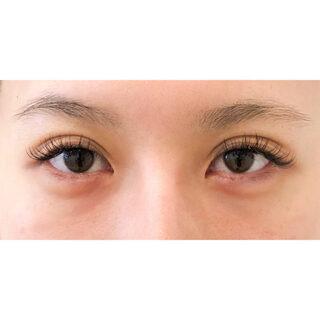 A CLINIC YOKOHAMA(エークリニック横浜)のたれ目女子は大人気です♪【たれ目形成術(切開法),目頭切開法,目尻切開】の症例写真(ビフォー)