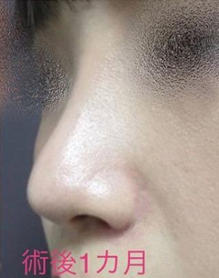 新宿TAクリニックの隆鼻術プロテーゼ+鼻翼縮小術(内側・外測法)+鼻尖縮小術+鼻尖4Dノーズの症例写真(アフター)