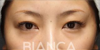 BIANCA銀座の眉下切開×ROOF切除×上瞼脂肪取りの症例写真(ビフォー)