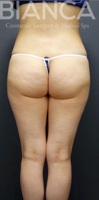 BIANCA銀座の美尻×美脚 脂肪吸引の症例写真(ビフォー)