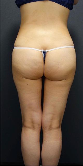 BIANCA銀座の美尻×美脚 脂肪吸引の症例写真(アフター)