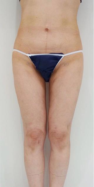 BIANCA銀座の美脚 脂肪吸引の症例写真(アフター)