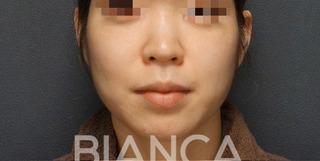 BIANCA銀座の小顔治療 術後1年半の症例写真(ビフォー)