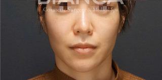 BIANCA銀座の小顔治療 術後1年半の症例写真(アフター)