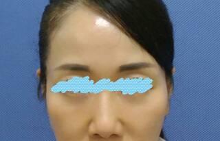 新宿美容外科クリニック 立川院の脱脂法(下まぶたのたるみ取り)の症例写真(アフター)