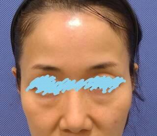 新宿美容外科クリニック 立川院の脱脂法(下まぶたのたるみ取り)の症例写真(ビフォー)