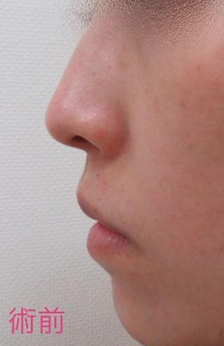 新宿TAクリニックの鼻尖縮小術+鼻尖4Dノーズの症例写真(ビフォー)