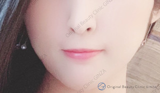 Original Beauty Clinic GINZAのHIFUの症例写真(ビフォー)