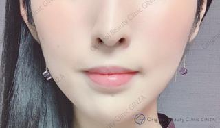 Original Beauty Clinic GINZAのHIFUの症例写真(アフター)