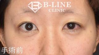 B-LINE CLINICの【左眼瞼下垂手術(切開法)】 6日後(抜糸直後)の症例写真(ビフォー)