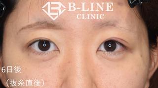 B-LINE CLINICの【左眼瞼下垂手術(切開法)】 6日後(抜糸直後)の症例写真(アフター)