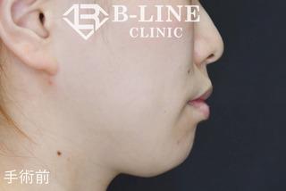 B-LINE CLINICの【あごプロテーゼ】 1ヵ月後の症例写真(ビフォー)