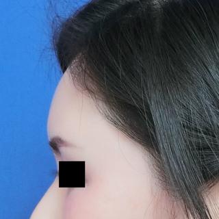 グローバルビューティークリニックのコンデンスリッチフェイス(額)の症例写真(アフター)