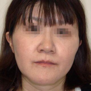 カトレア歯科・美容クリニック(旧クローバー歯科・美容クリニック輪郭整形部門)の下あごセットバックの症例写真(アフター)