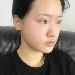 アイウェル整形外科の鼻フル整形の症例写真(ビフォー)