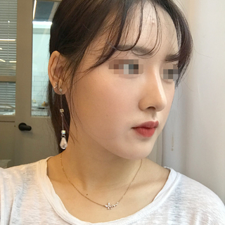 アイウェル整形外科の鼻フル整形の症例写真(アフター)