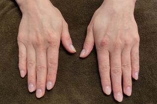グローバルビューティークリニックのフィラーゲラー(マイクロCRF注入術)手の甲の症例写真(ビフォー)