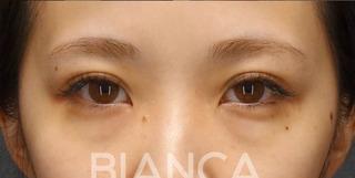 BIANCA銀座の二重全切開✖️グラマラスライン形成の症例写真(ビフォー)