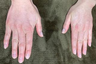 グローバルビューティークリニックのフィラーゲラー(マイクロCRF注入術)手の甲の症例写真(アフター)