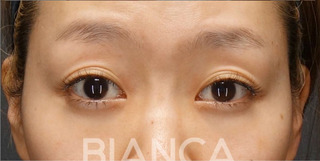 BIANCA銀座の目の開きを良く、美しい二重への症例写真(ビフォー)