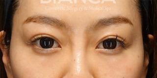BIANCA銀座の目の開きを良く、美しい二重への症例写真(アフター)