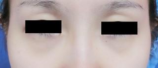 グローバルビューティークリニックの目の下のクマ・たるみ治療の症例写真(ビフォー)