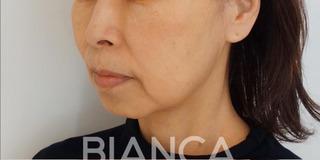 BIANCA銀座のたるみ治療の経過の症例写真(ビフォー)