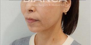 BIANCA銀座のたるみ治療の経過の症例写真(アフター)