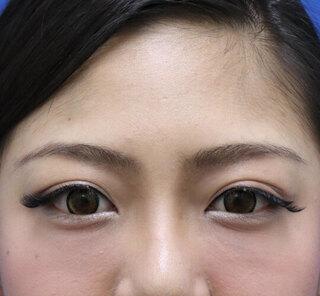 オザキクリニックLUXE新宿の眉下切開クアンクアイズの症例写真(ビフォー)