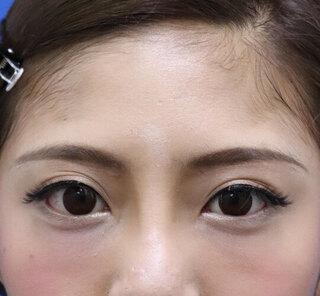 オザキクリニックLUXE新宿の眉下切開クアンクアイズの症例写真(アフター)