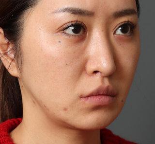 オザキクリニックLUXE新宿の眉下切開クアンクアイズ+メーラーファットFitリフトの症例写真(ビフォー)