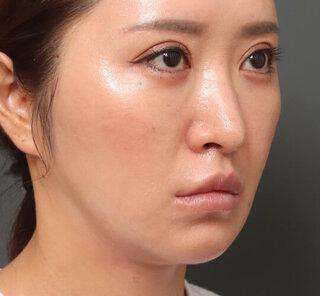 オザキクリニックLUXE新宿の眉下切開クアンクアイズ+メーラーファットFitリフトの症例写真(アフター)